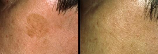 Traitement des lésions pigmentaires par laser - Rappel clinique